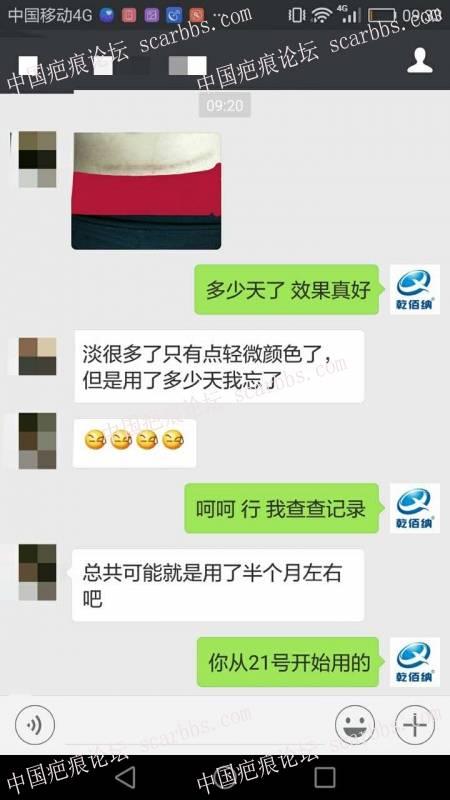 剖腹产疤痕修复十六天效果惊人!46-疤痕体质图片_疤痕疙瘩图片-中国疤痕论坛