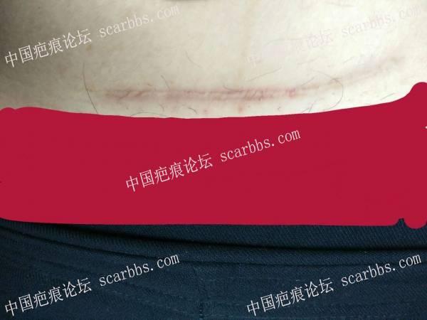 剖腹产疤痕修复十六天效果惊人!53-疤痕体质图片_疤痕疙瘩图片-中国疤痕论坛