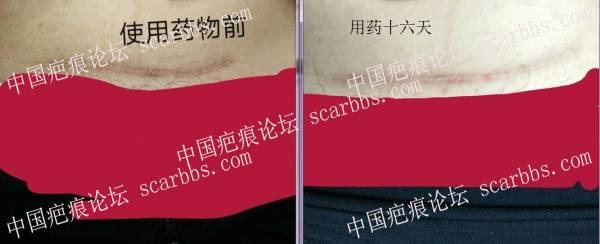 剖腹产疤痕修复十六天效果惊人!54-疤痕体质图片_疤痕疙瘩图片-中国疤痕论坛