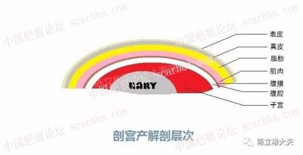 陈立彬疤痕讲堂:剖腹产手术疤痕12-疤痕体质图片_疤痕疙瘩图片-中国疤痕论坛