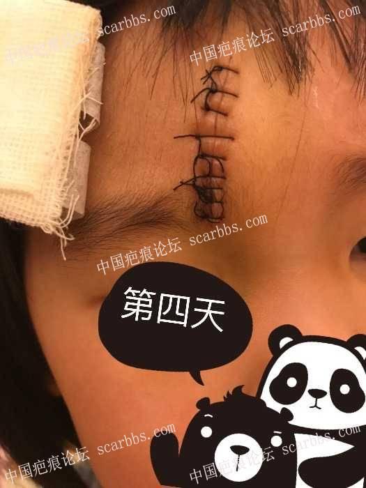 女儿额头磕伤  普通缝合9针84-疤痕体质图片_疤痕疙瘩图片-中国疤痕论坛