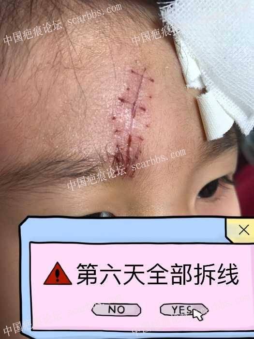 女儿额头磕伤  普通缝合9针64-疤痕体质图片_疤痕疙瘩图片-中国疤痕论坛