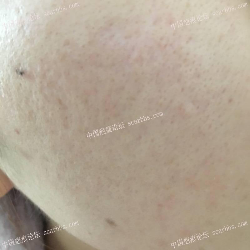 首次切除拆线7周后第一次点阵+磨削1-疤痕体质图片_疤痕疙瘩图片-中国疤痕论坛