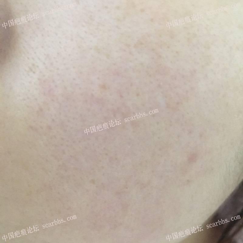 首次切除拆线7周后第一次点阵+磨削33-疤痕体质图片_疤痕疙瘩图片-中国疤痕论坛