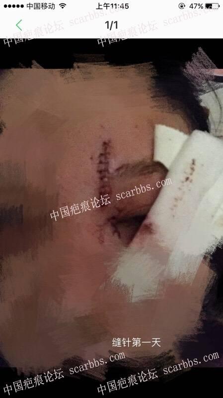 额头上缝了10针,请跟我一起护理吧!坚持就是胜利!71-疤痕体质图片_疤痕疙瘩图片-中国疤痕论坛