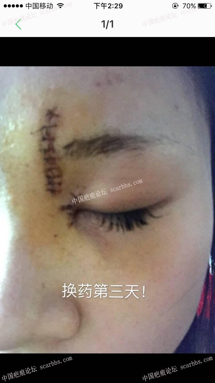 额头上缝了10针,请跟我一起护理吧!坚持就是胜利!45-疤痕体质图片_疤痕疙瘩图片-中国疤痕论坛