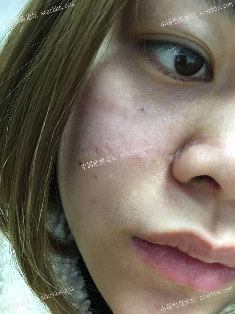疤痕切除大半年之后的效果74-疤痕体质图片_疤痕疙瘩图片-中国疤痕论坛