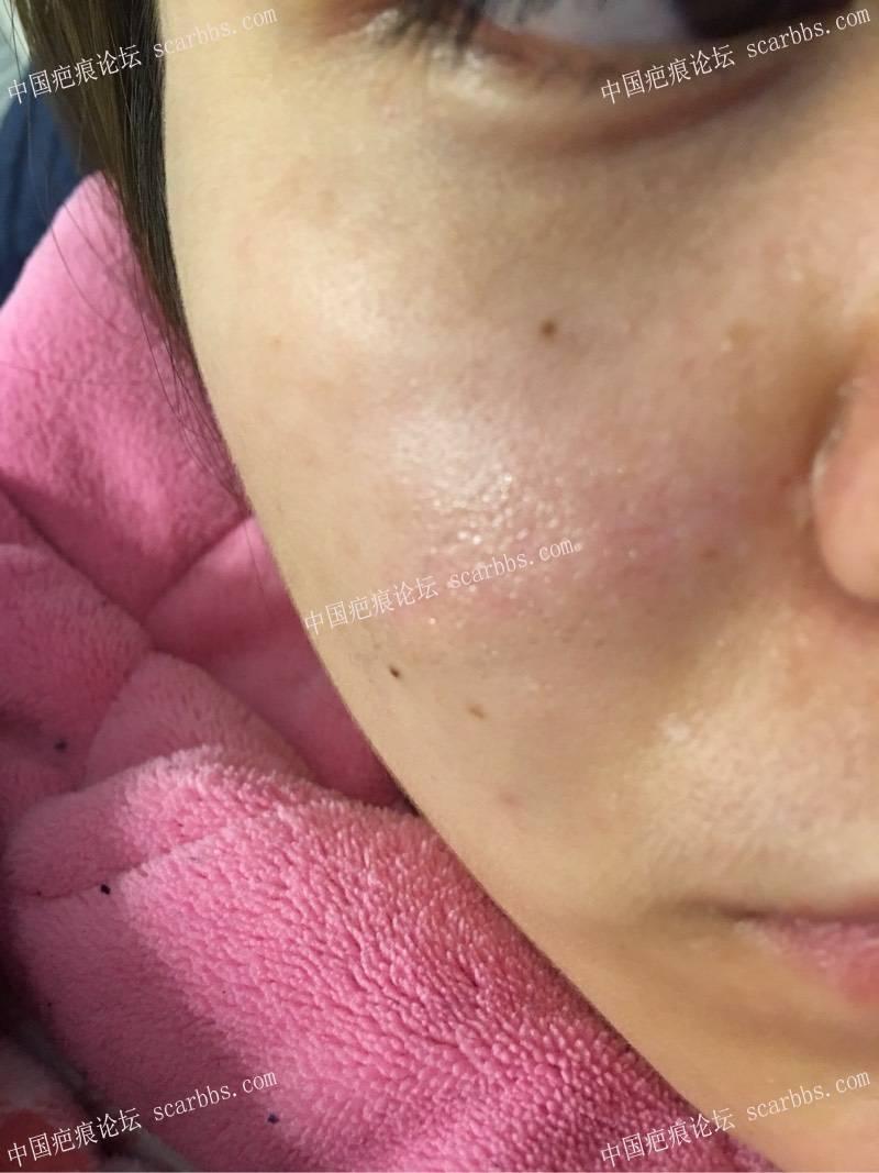疤痕切除大半年之后的效果55-疤痕体质图片_疤痕疙瘩图片-中国疤痕论坛