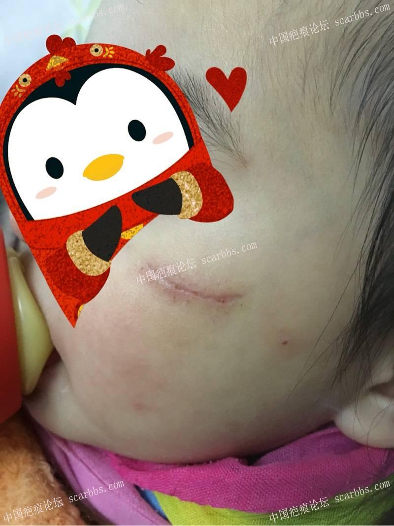 求助祛疤,怎样护理可以达到预期无痕效果。100-疤痕体质图片_疤痕疙瘩图片-中国疤痕论坛
