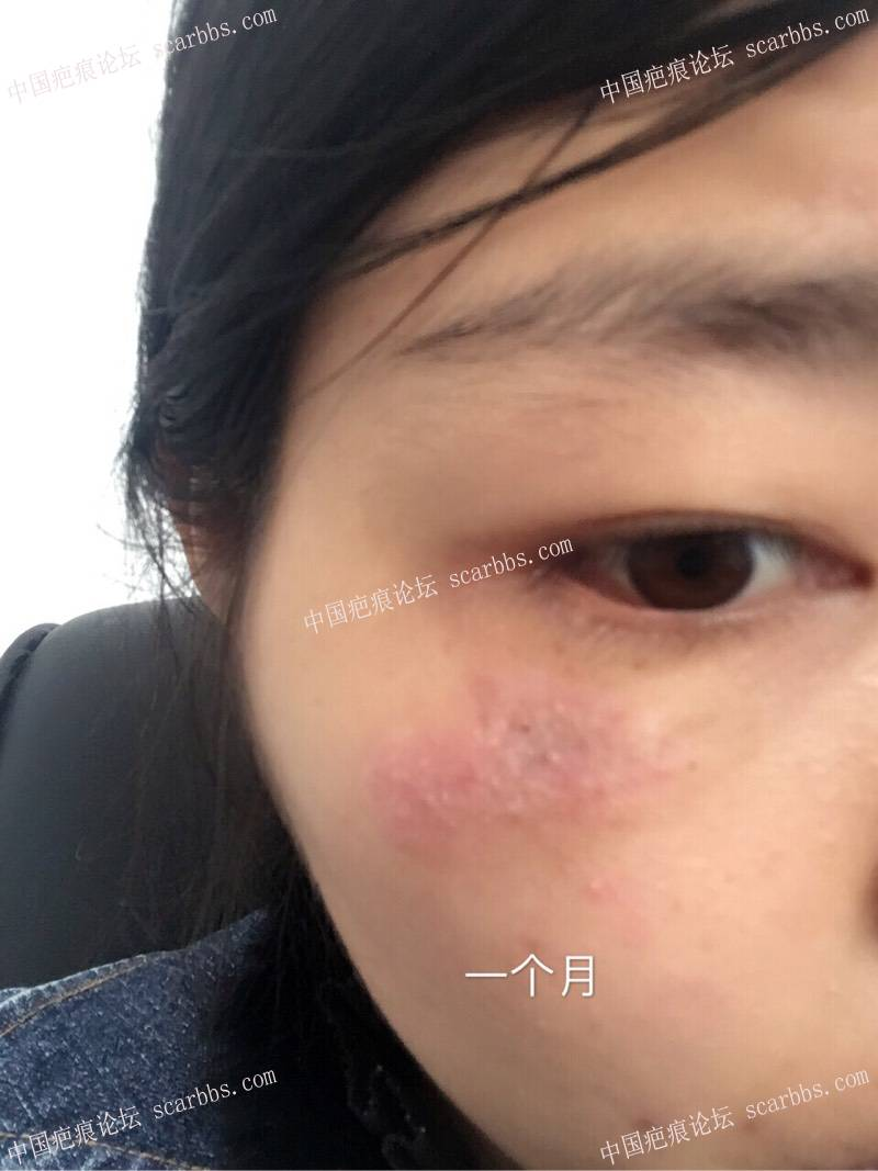 做个美丽勇敢的妈妈,最终决定手术将脸上疤痕祛除