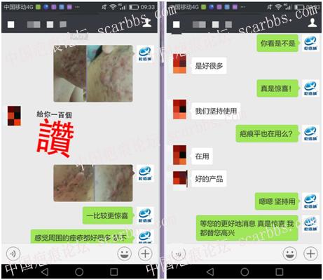 第一期乾佰纳疤痕平祛疤活动效果展示!12-疤痕体质图片_疤痕疙瘩图片-中国疤痕论坛