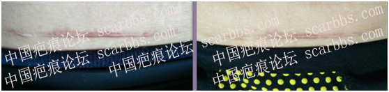 第一期乾佰纳疤痕平祛疤活动效果展示!61-疤痕体质图片_疤痕疙瘩图片-中国疤痕论坛