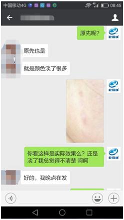 第一期乾佰纳疤痕平祛疤活动效果展示!17-疤痕体质图片_疤痕疙瘩图片-中国疤痕论坛