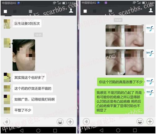 第一期乾佰纳疤痕平祛疤活动效果展示!7-疤痕体质图片_疤痕疙瘩图片-中国疤痕论坛