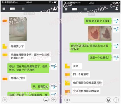 第一期乾佰纳疤痕平祛疤活动效果展示!71-疤痕体质图片_疤痕疙瘩图片-中国疤痕论坛