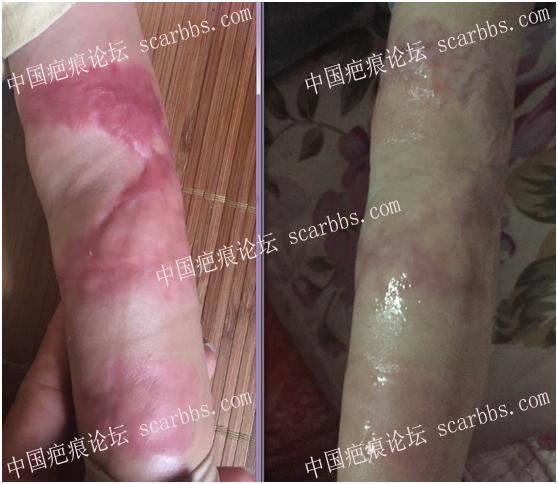 第一期乾佰纳疤痕平祛疤活动效果展示!53-疤痕体质图片_疤痕疙瘩图片-中国疤痕论坛