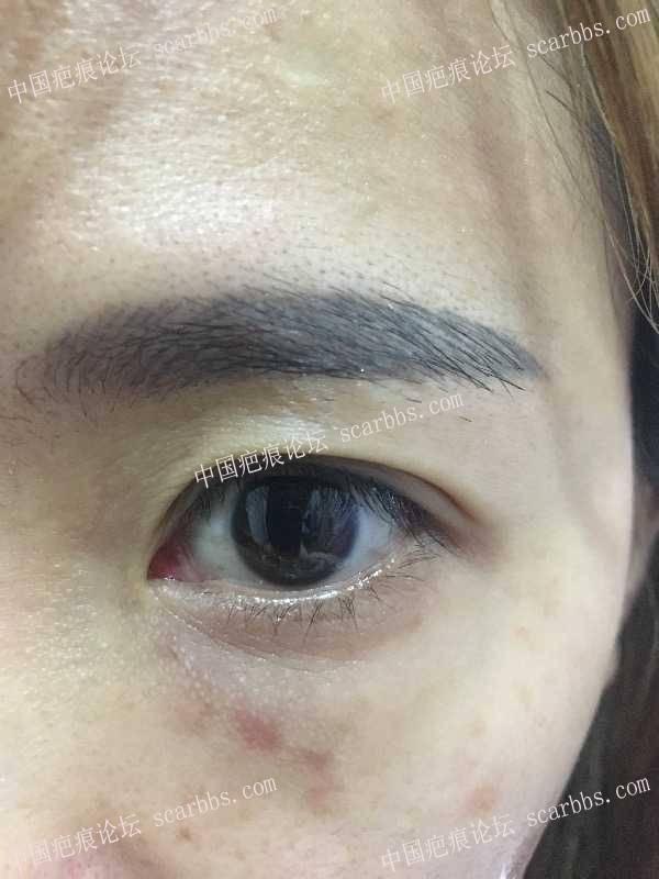 疤痕小知识——专业俗语篇22-疤痕体质图片_疤痕疙瘩图片-中国疤痕论坛