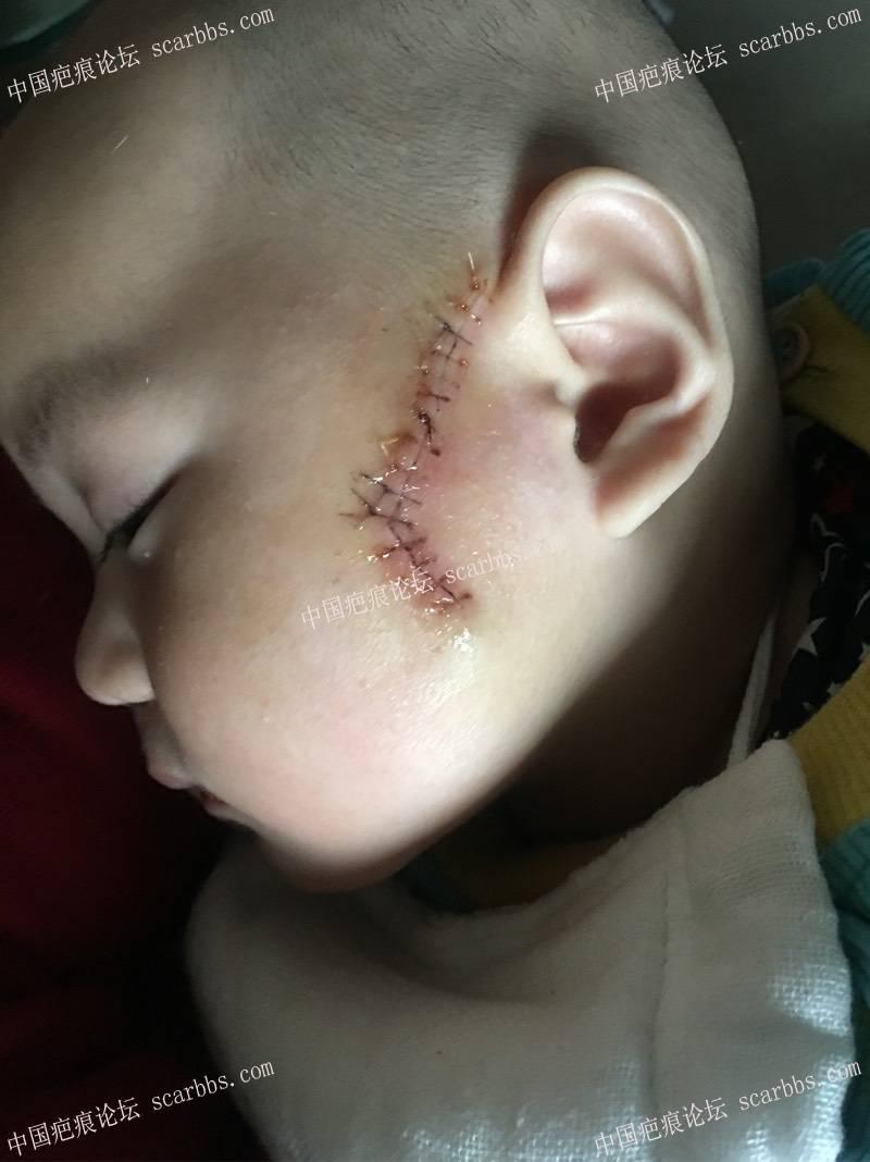 宝宝皮脂腺痣切除后的护理过程 皮脂腺痣,手术切缝
