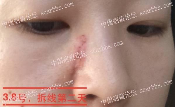 面部十五年点痣疤痕武汉切缝修复详细记录 点痣疤痕,面部疤痕,手术切缝,