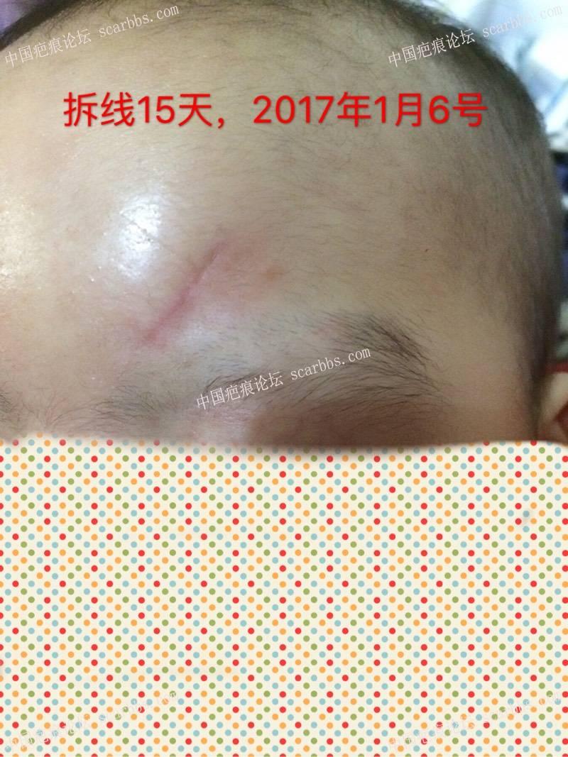 记录宝贝额头磕伤长2.5厘米,深0.6厘米的恢复过程28-疤痕体质图片_疤痕疙瘩图片-中国疤痕论坛