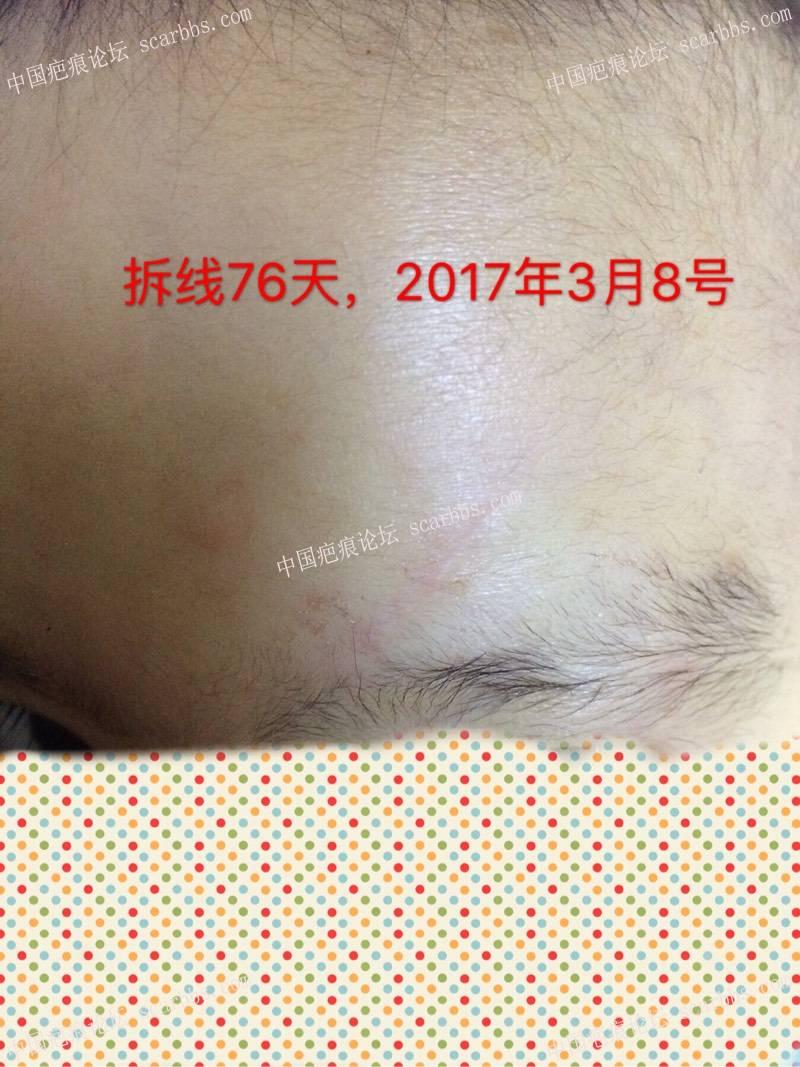 记录宝贝额头磕伤长2.5厘米,深0.6厘米的恢复过程100-疤痕体质图片_疤痕疙瘩图片-中国疤痕论坛