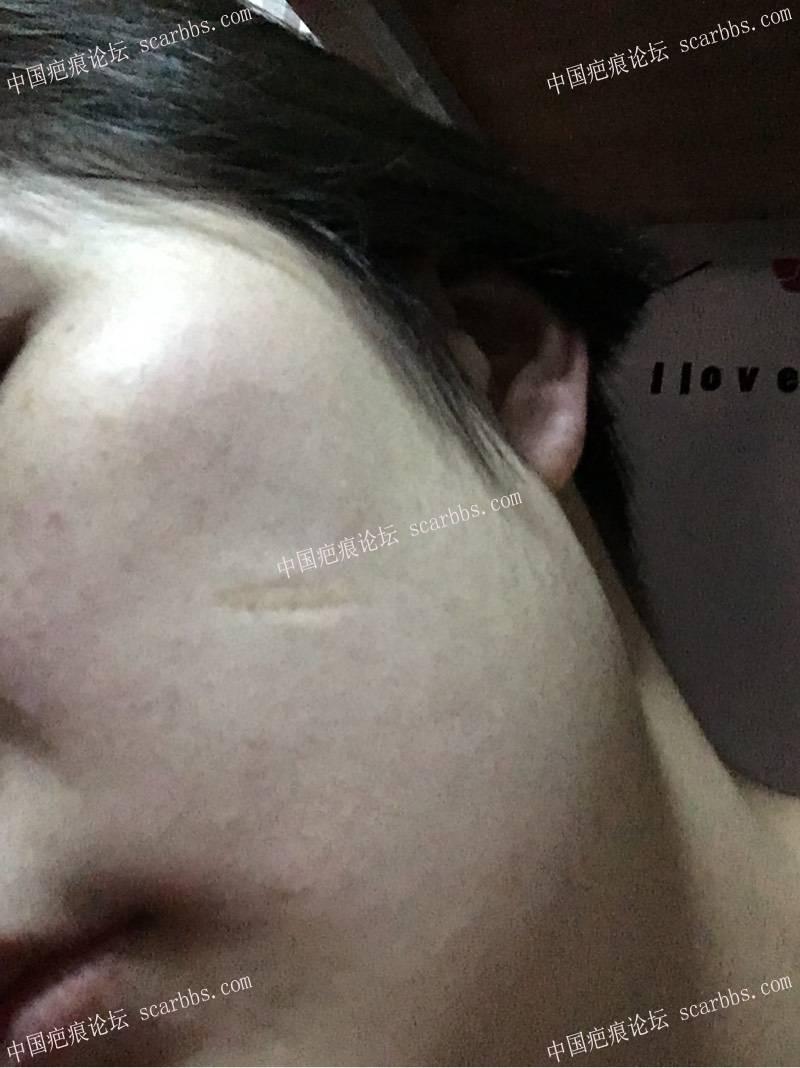 十几年的磕伤疤痕选择王连召医生切除了,详细记录恢复过程