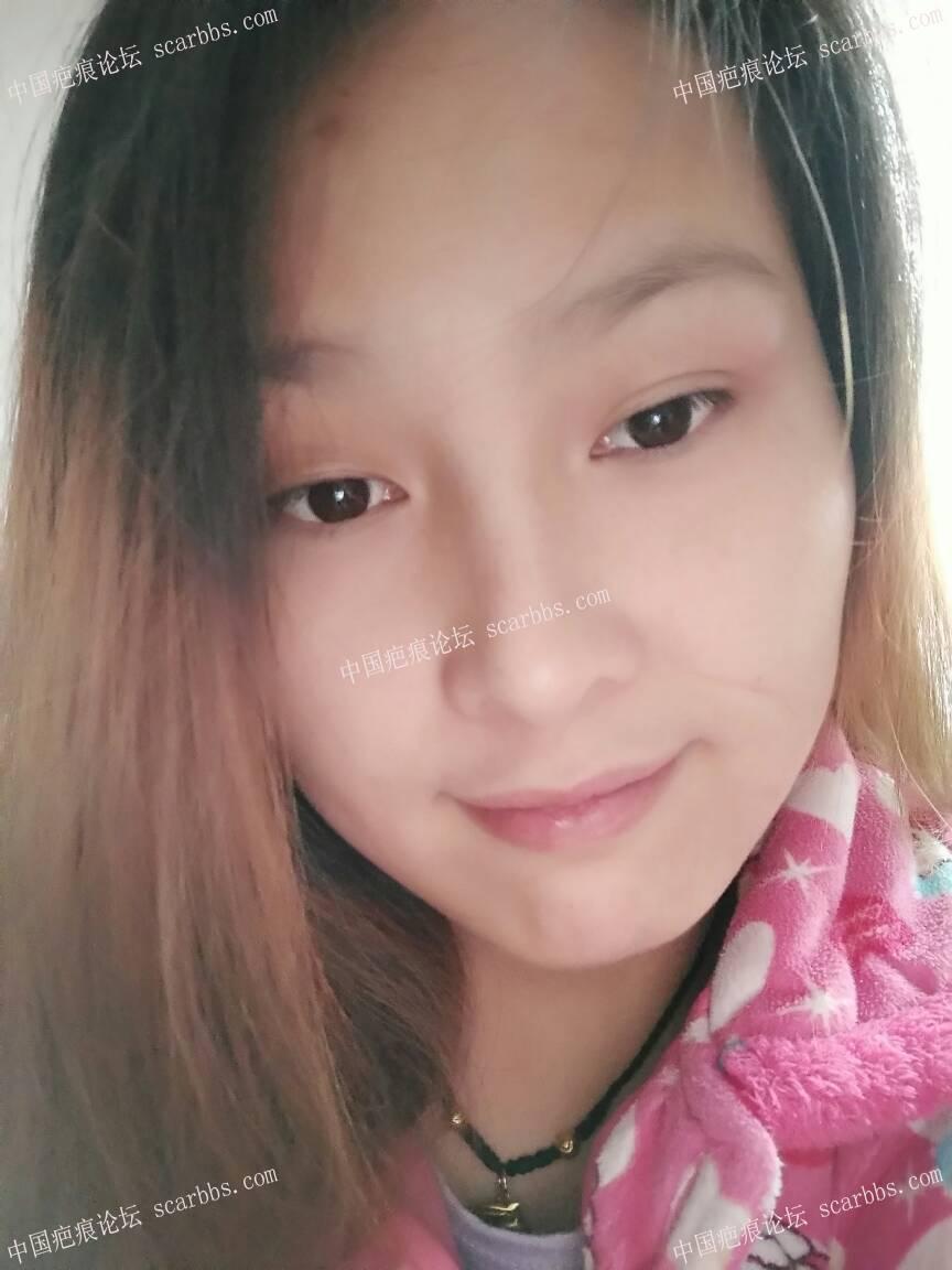 虽然有了疤,但是我依然健康快乐开心。
