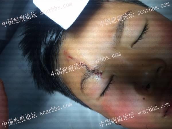 六岁孩子额头磕伤疤痕,求预防疤痕方法69-疤痕体质图片_疤痕疙瘩图片-中国疤痕论坛