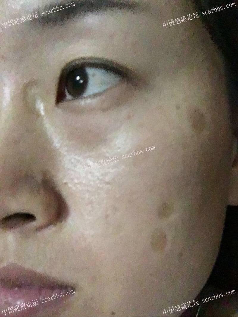 小时候烫伤了脸,做了切缝手术,记录一下我的祛疤历程70-疤痕体质图片_疤痕疙瘩图片-中国疤痕论坛