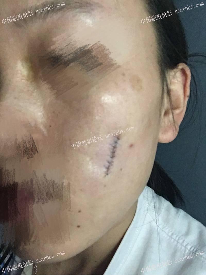 小时候烫伤了脸,做了切缝手术,记录一下我的祛疤历程24-疤痕体质图片_疤痕疙瘩图片-中国疤痕论坛