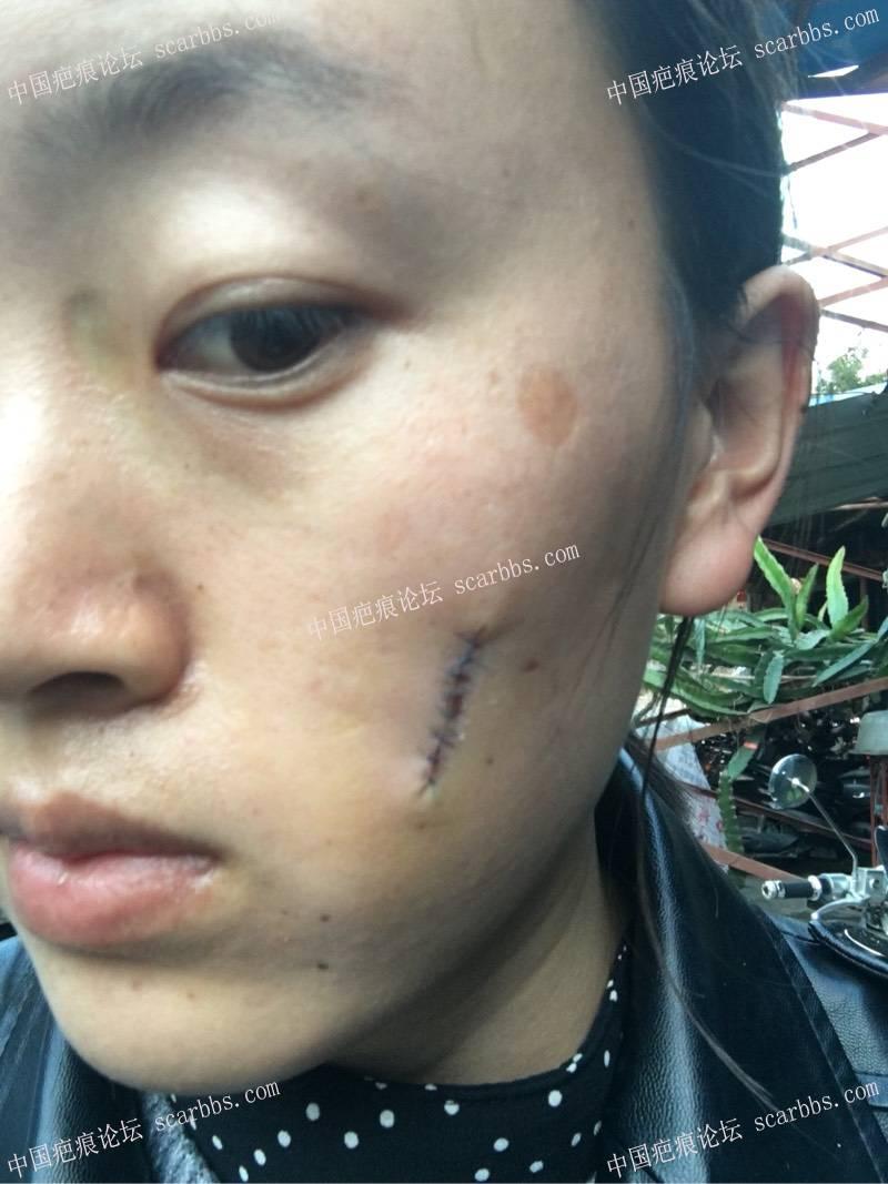 小时候烫伤了脸,做了切缝手术,记录一下我的祛疤历程30-疤痕体质图片_疤痕疙瘩图片-中国疤痕论坛