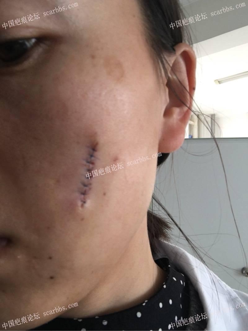 小时候烫伤了脸,做了切缝手术,记录一下我的祛疤历程11-疤痕体质图片_疤痕疙瘩图片-中国疤痕论坛