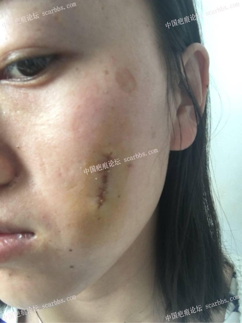 小时候烫伤了脸,做了切缝手术,记录一下我的祛疤历程