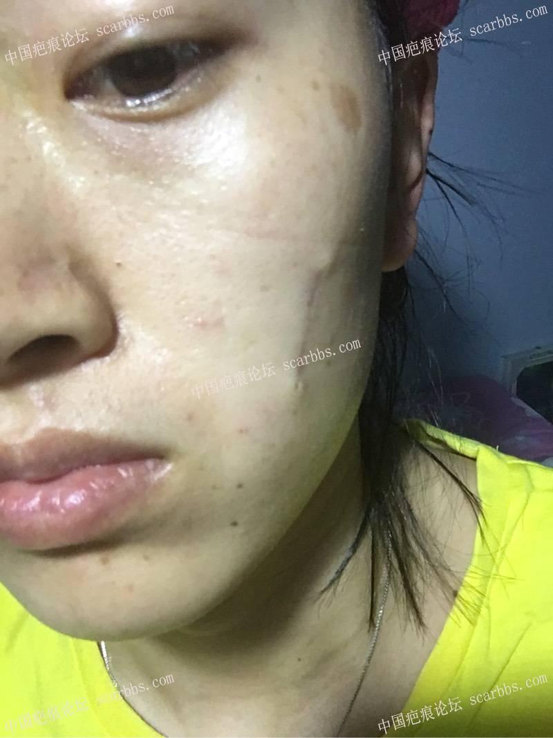 小时候烫伤了脸,做了切缝手术,记录一下我的祛疤历程12-疤痕体质图片_疤痕疙瘩图片-中国疤痕论坛