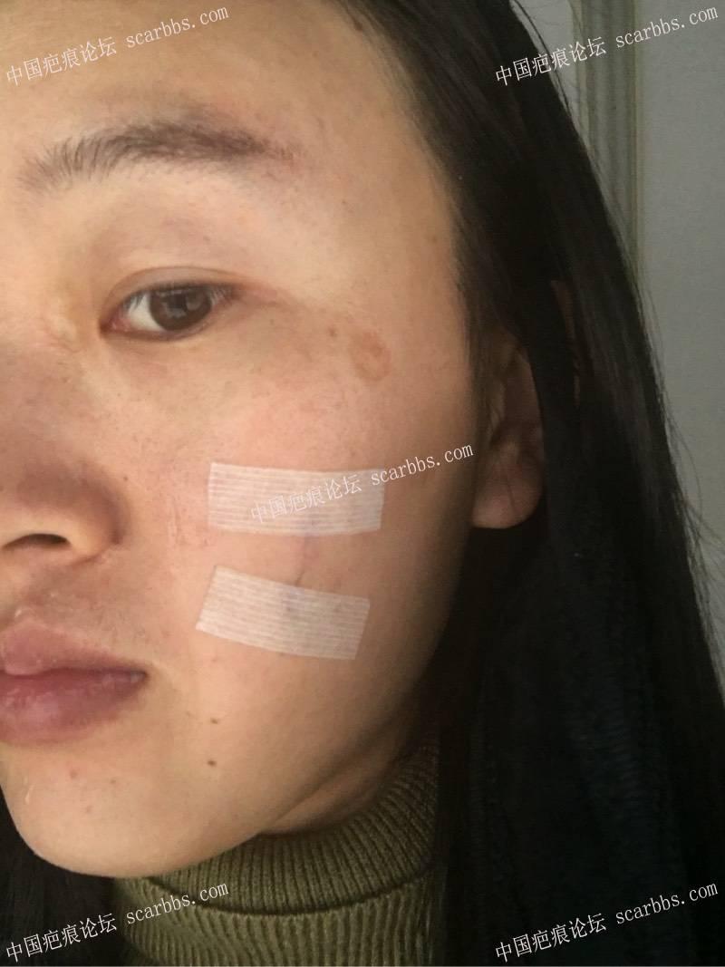 小时候烫伤了脸,做了切缝手术,记录一下我的祛疤历程93-疤痕体质图片_疤痕疙瘩图片-中国疤痕论坛