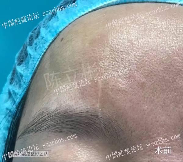面部陈旧疤痕术后治疗反馈