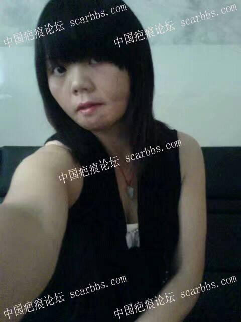 用扩张器疗法甩掉跟了我30年的疤88-疤痕体质图片_疤痕疙瘩图片-中国疤痕论坛
