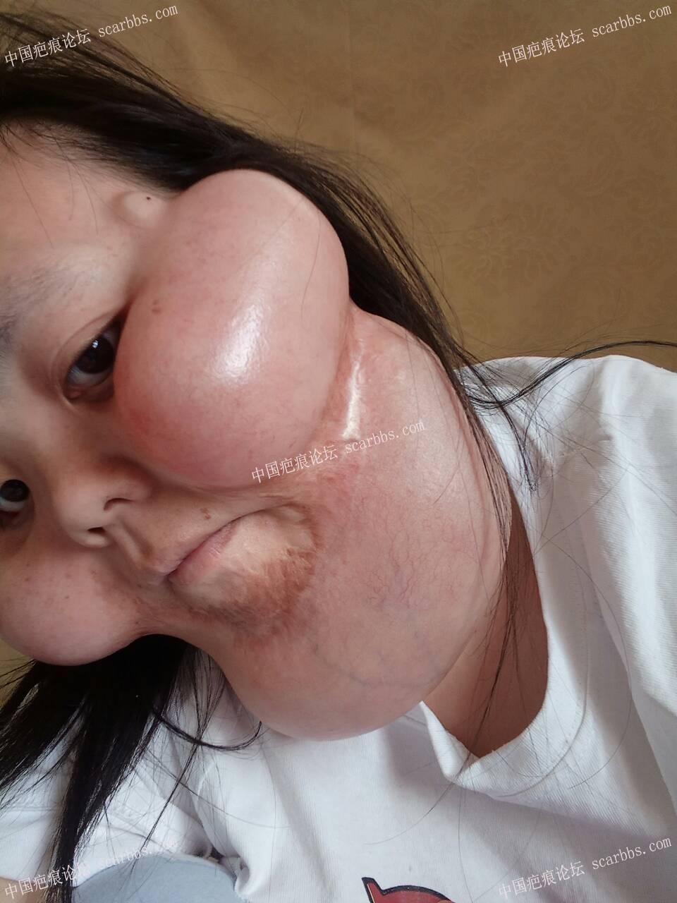 用扩张器疗法甩掉跟了我30年的疤46-疤痕体质图片_疤痕疙瘩图片-中国疤痕论坛