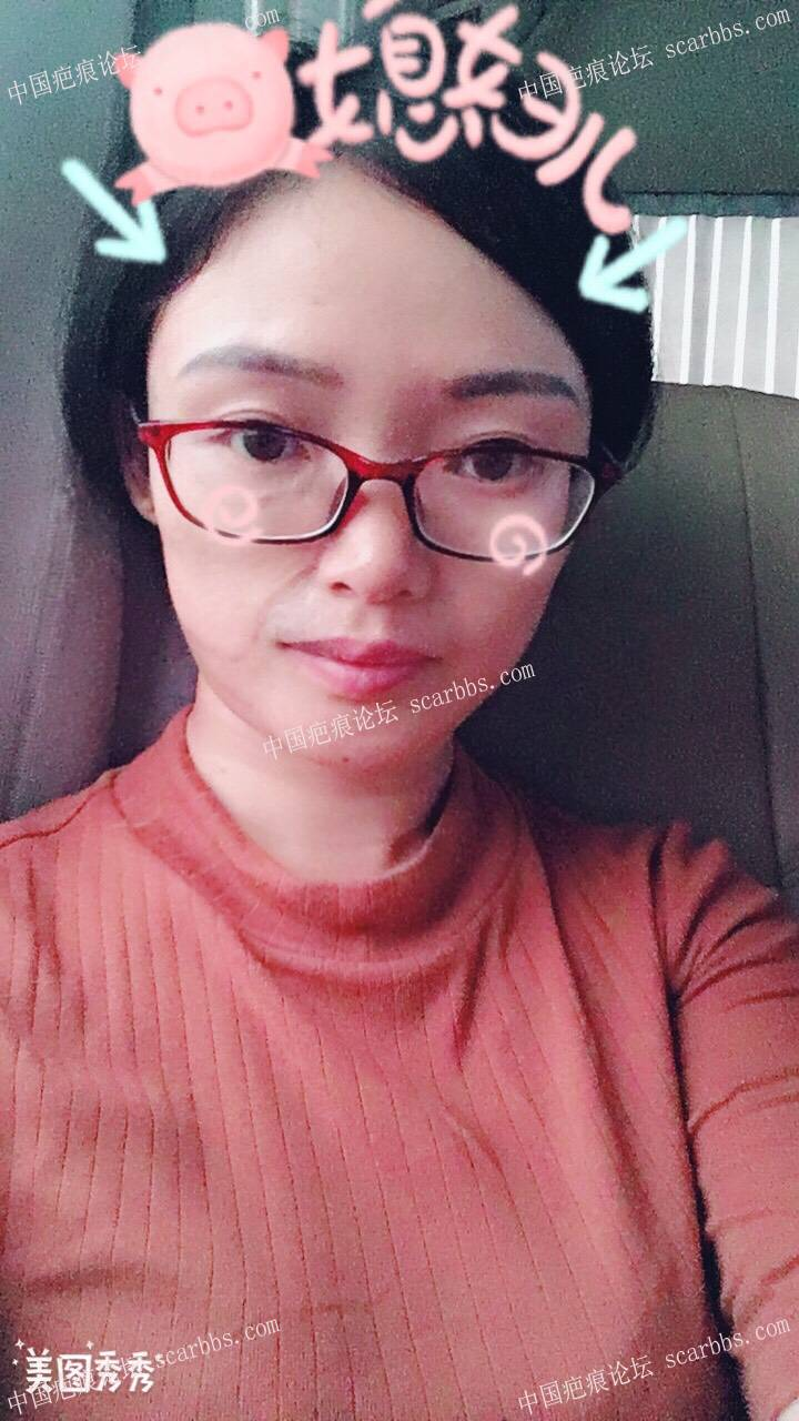 我是一名扩张器植皮疤痕患者50-疤痕体质图片_疤痕疙瘩图片-中国疤痕论坛