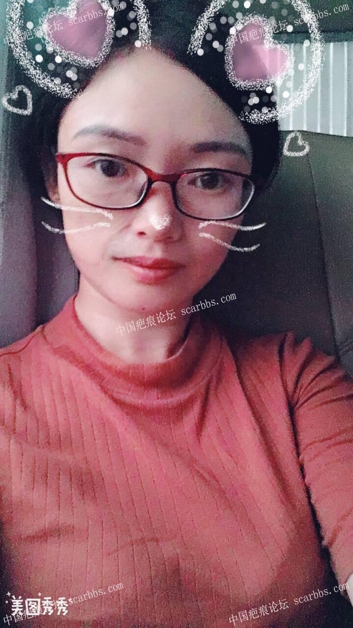 扩张器后的蜕变给疤友带点信心17-疤痕体质图片_疤痕疙瘩图片-中国疤痕论坛