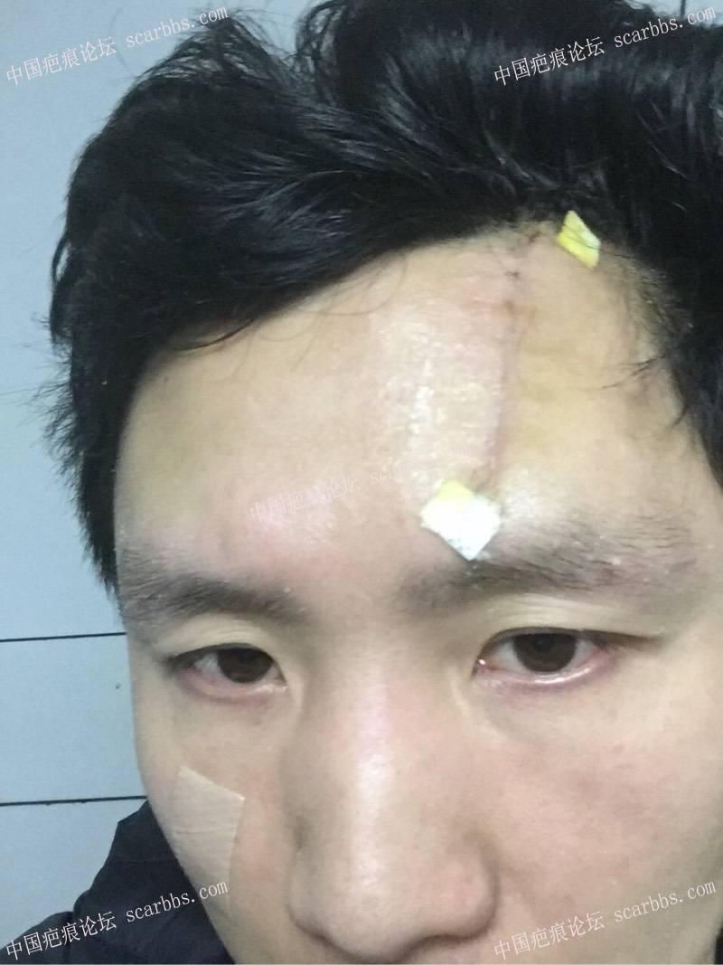 我额头疤痕手术照片及对细胞种植的看法20-疤痕体质图片_疤痕疙瘩图片-中国疤痕论坛