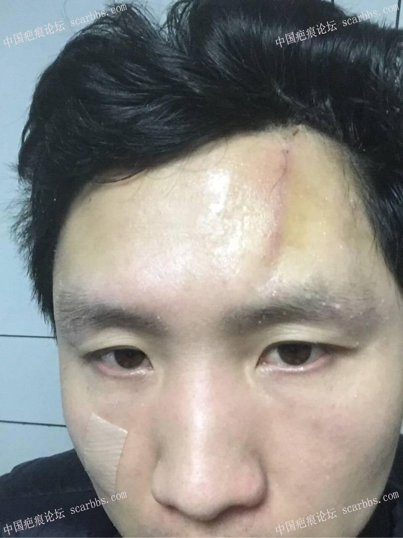 我额头疤痕手术照片及对细胞种植的看法88-疤痕体质图片_疤痕疙瘩图片-中国疤痕论坛