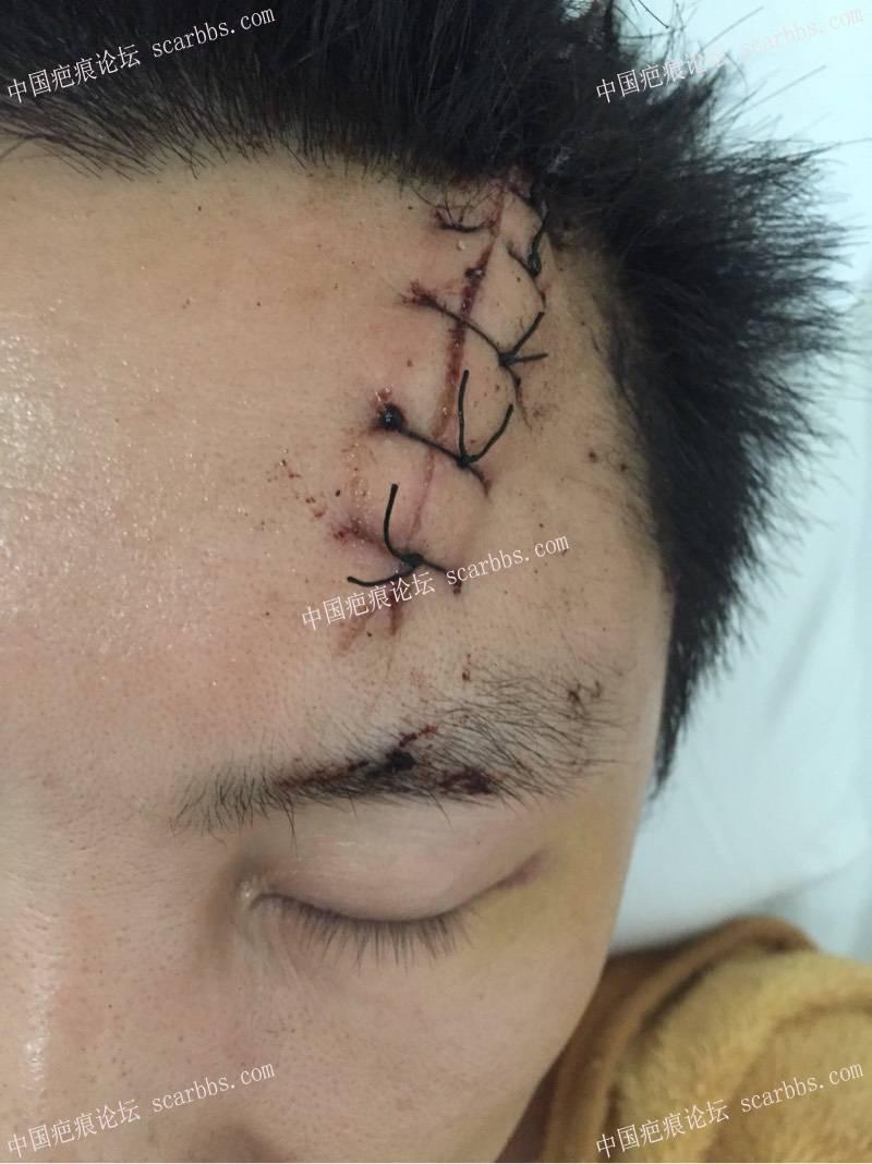 我额头疤痕手术照片及对细胞种植的看法9-疤痕体质图片_疤痕疙瘩图片-中国疤痕论坛
