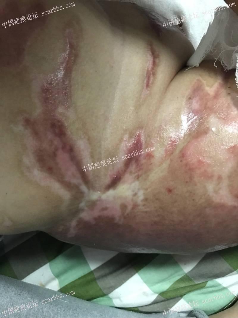 愿我的抗疤心得可以给正在迷茫的宝妈一点信心!37-疤痕体质图片_疤痕疙瘩图片-中国疤痕论坛