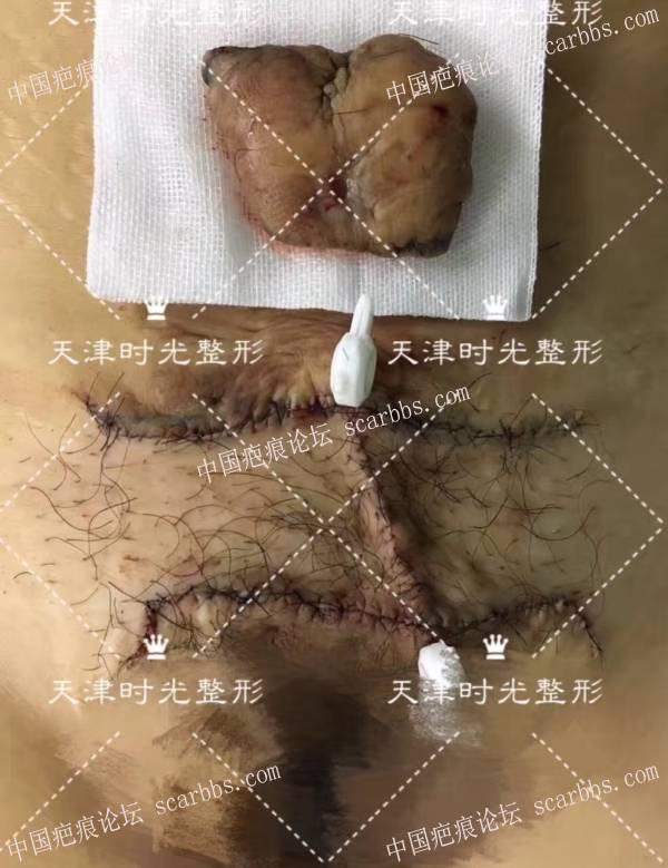 背部+腹部疤痕疙瘩切除14-疤痕体质图片_疤痕疙瘩图片-中国疤痕论坛