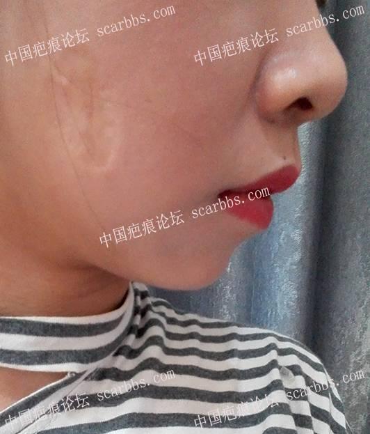 血管瘤冷冻后凹陷疤痕切除啦!!~23-疤痕体质图片_疤痕疙瘩图片-中国疤痕论坛