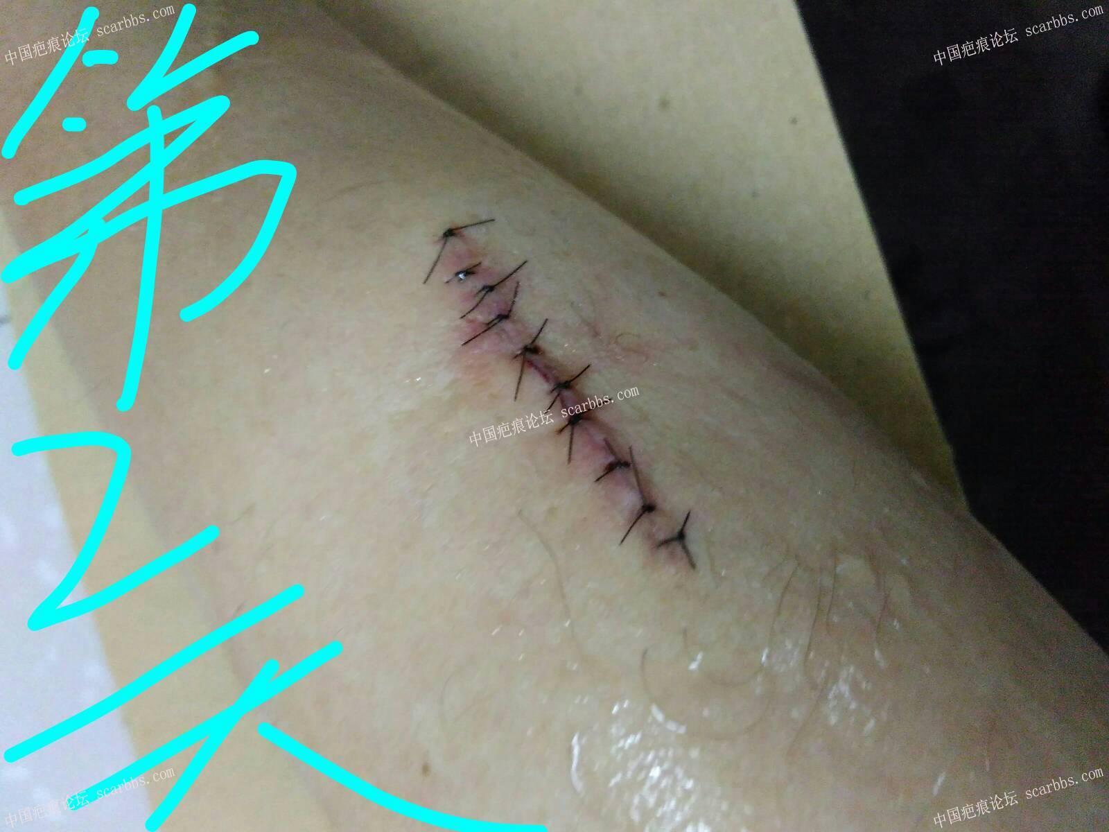 手臂疤痕切除缝合纪录