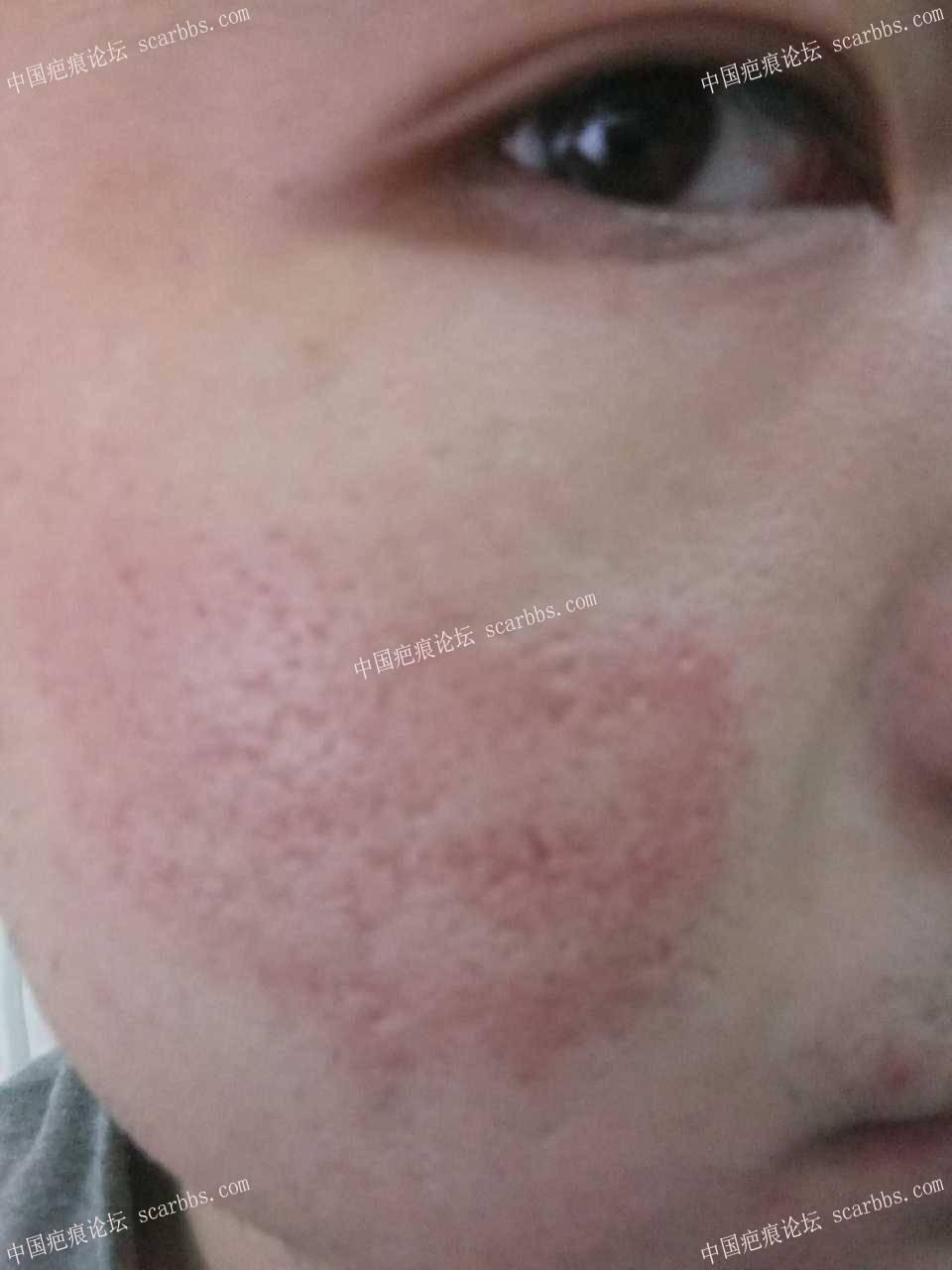 十几次微针治疗大面积痘坑的分享95-疤痕体质图片_疤痕疙瘩图片-中国疤痕论坛