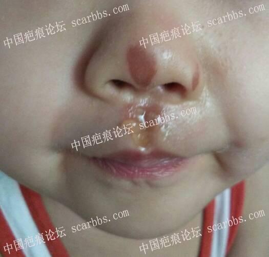 浅谈表皮擦伤后如何正确护理33-疤痕体质图片_疤痕疙瘩图片-中国疤痕论坛