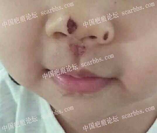 浅谈表皮擦伤后如何正确护理47-疤痕体质图片_疤痕疙瘩图片-中国疤痕论坛